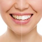 Bleaching Ästhetische Zahnheilkunde Sagadent