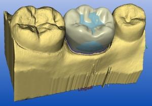 CEREC 3D Ansicht Sagadent