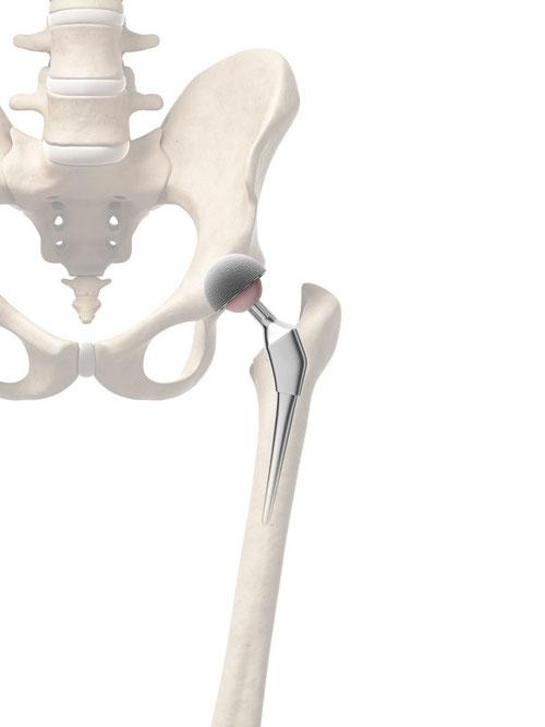 Gelenkersatz Sagadent Implantologie