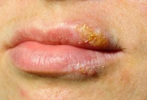 Herpes Sagadent