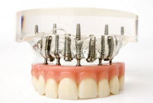 Implantatprothese Zahnersatz Sagadent