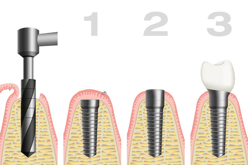 Ablauf Implantologie