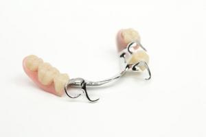 Klammerprothese Zahnersatz Sagadent