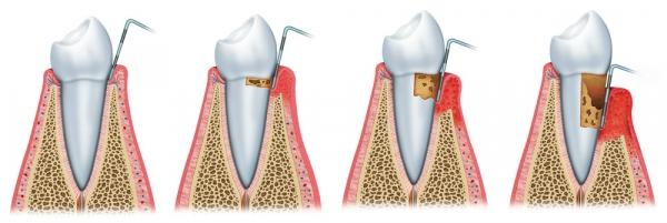 Parodontitis Sagadent