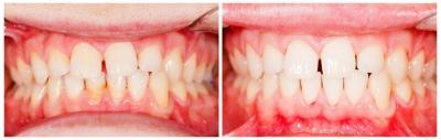 Professionelle Zahnreinigung bei Mundgeruch Sagadent