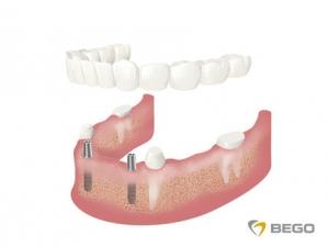 Herausnehmbarer Zahnersatz Prothesen Implantologie Sagadent