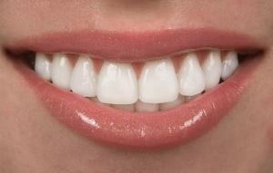 Veneers Ästhetische Zahnheilkunde Sagadent