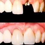 Keramikkronen Ästhetische Zahnmedizin Sagadent
