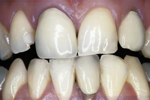 Vollkeramikkronen Ästhetische Zahnmedizin Sagadent