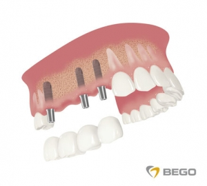 Implantate Sagadent