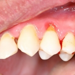 Zahnfleischkorrektur Ästhetische Zahnmedizin Sagadent